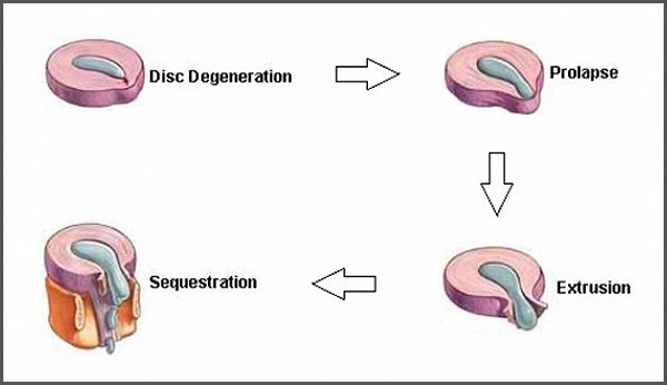 herniated disc stages