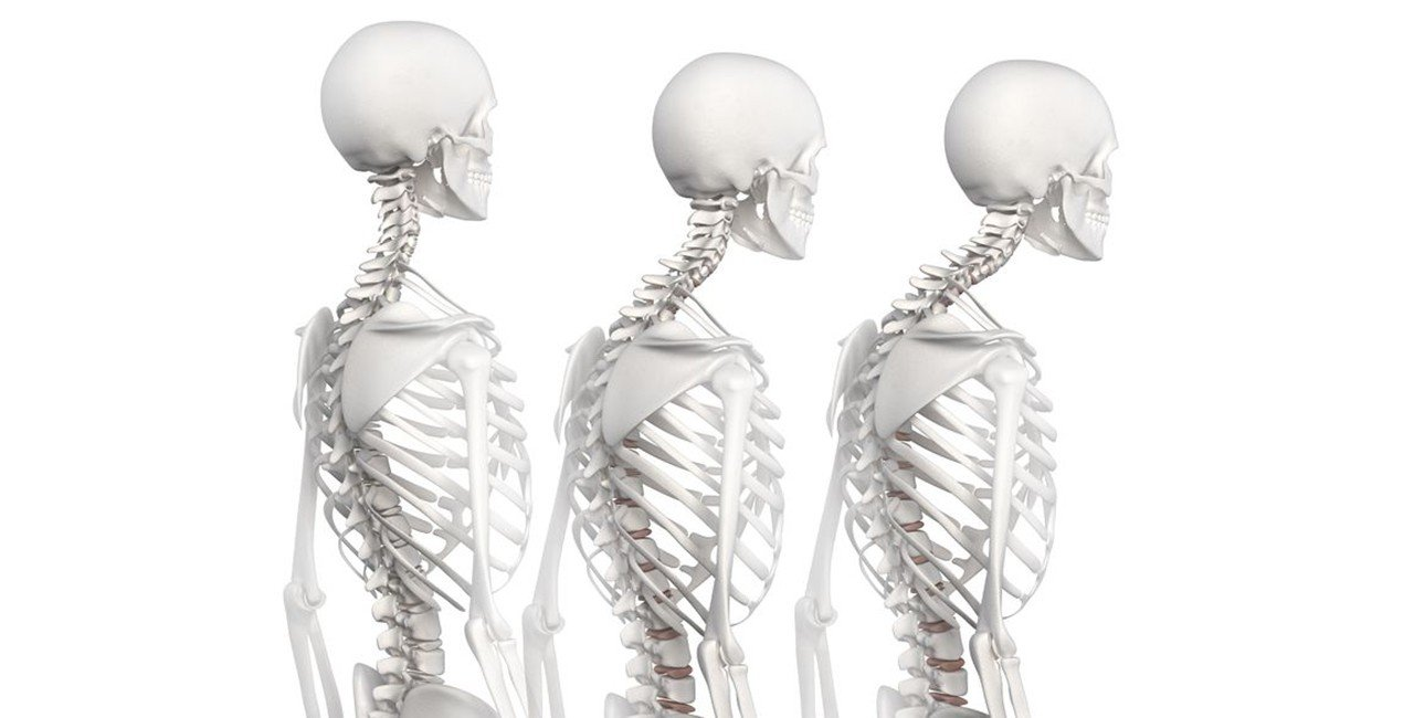 Seattle Corrective Chiropractic: Poor Posture and Disease Go Hand in Hand