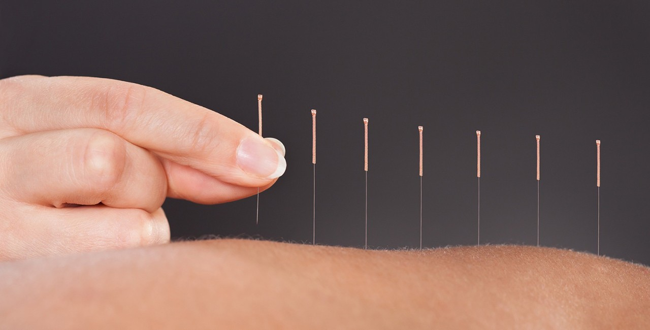 Why Consider Acupuncture