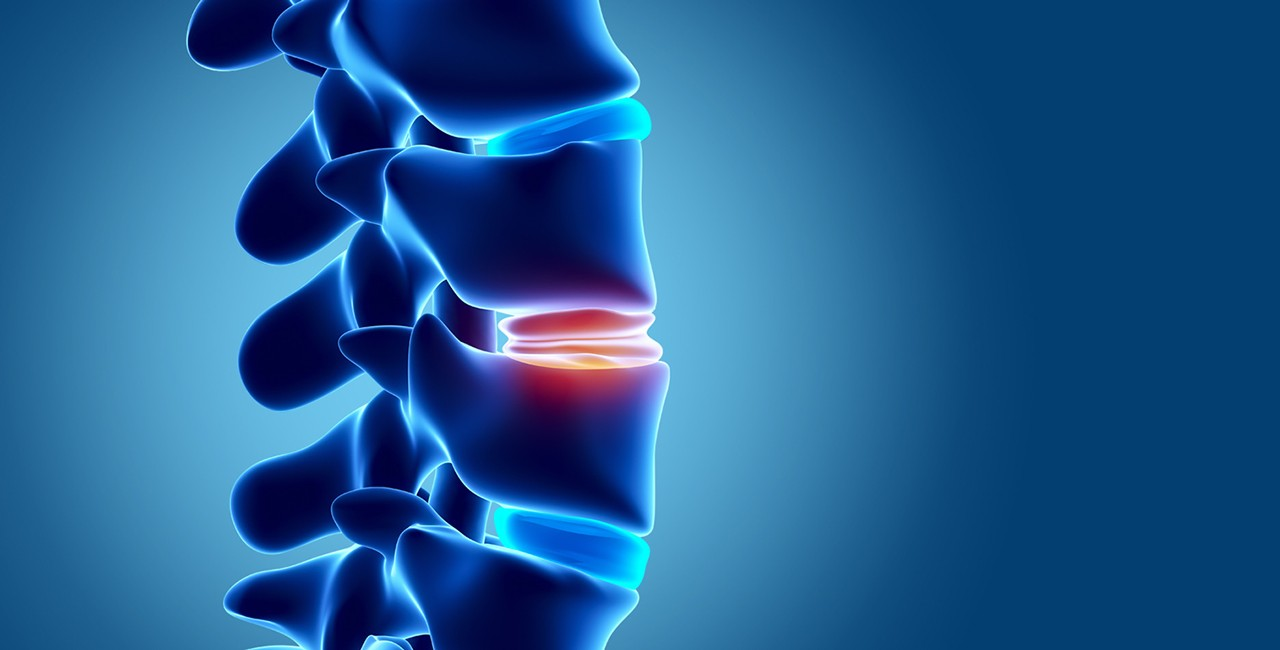 Causes of Degenerative Disc Disease