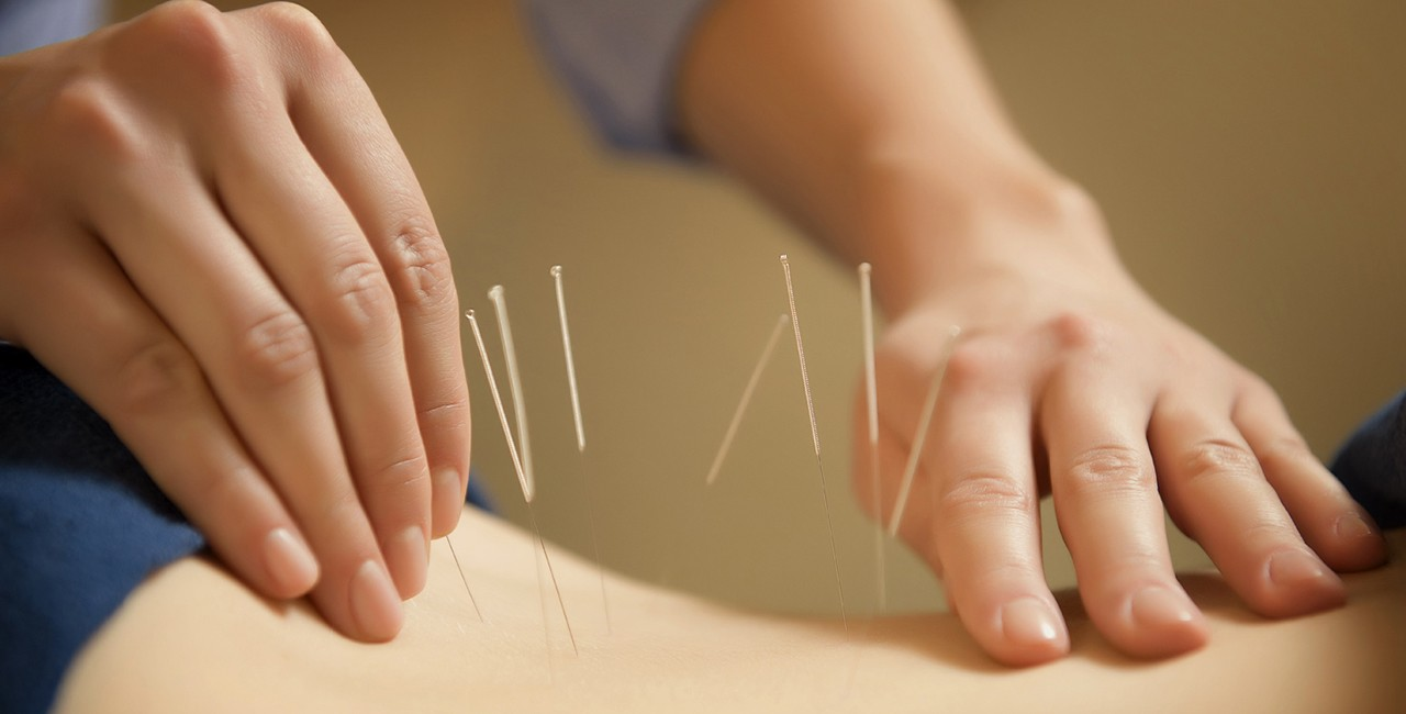 Experiencing the Art of Acupuncture